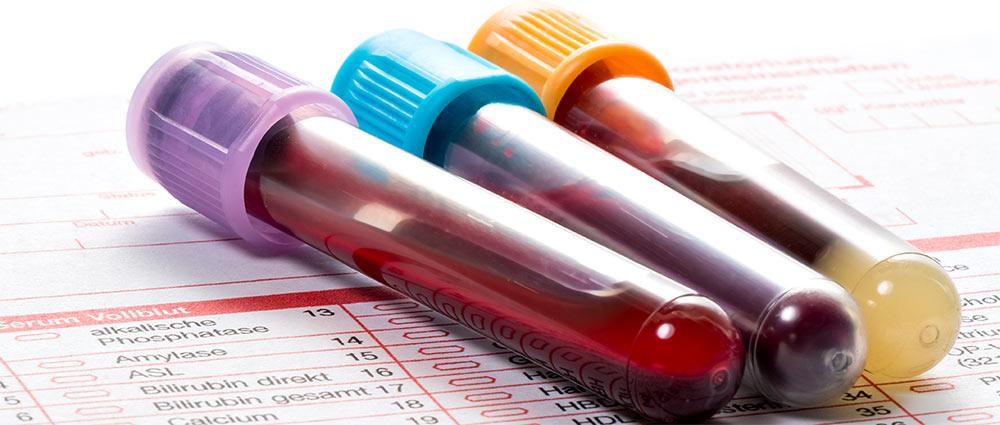 Image result for Blood Testing services